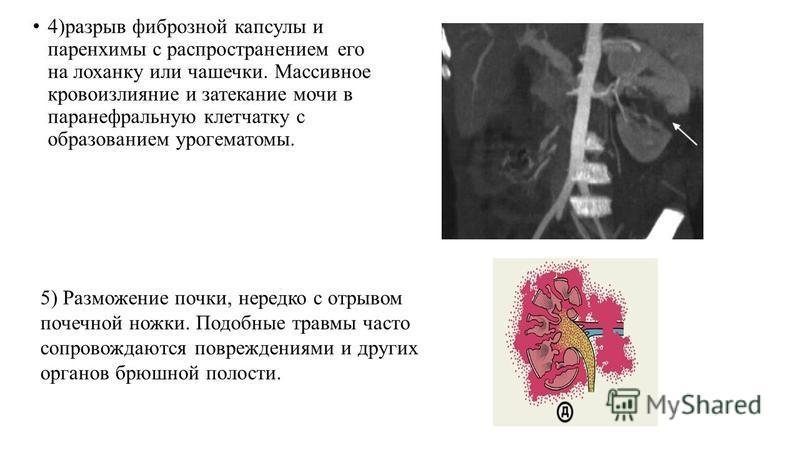 4)разрыв фиброзной капсулы и паренхимы с распространением его на лоханку или чашечки. Массивное кровоизлияние и затекание мочи в паранефральную клетчатку с образованием урогематомы. 5) Разможение почки, нередко с отрывом почечной ножки. Подобные трав