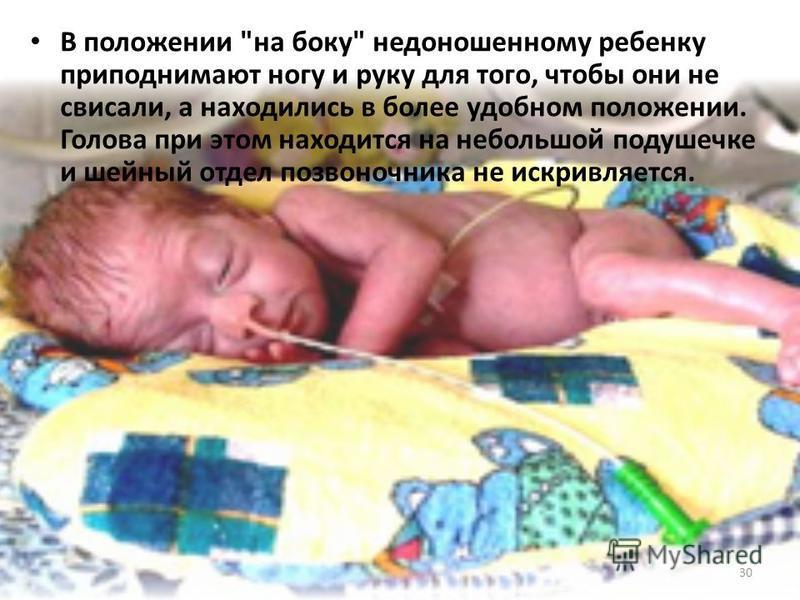 В положении на боку недоношенному ребенку приподнимают ногу и руку для того, чтобы они не свисали, а находились в более удобном положении. Голова при этом находится на небольшой подушечке и шейный отдел позвоночника не искривляется. 30