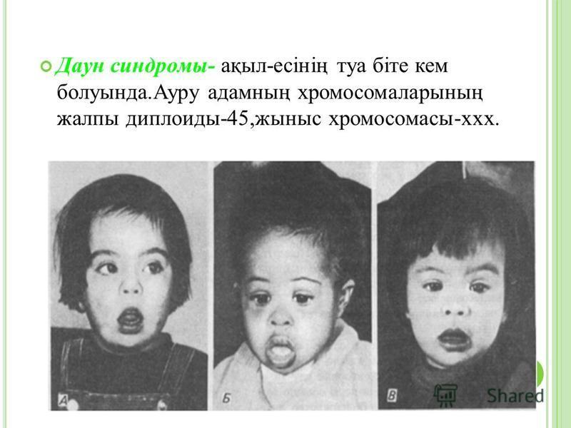 Даун синдромы- ақыл-есінің туа біте кем болуында.Ауру адамның хромосомаларының жалпы диплоиды-45,жыныс хромосомасы-ххх.