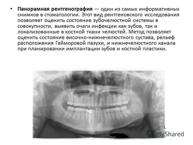 Панорамная рентгенография один из самых информативных снимков в стоматологии. Этот вид рентгеновского исследования позволяет оценить состояние зубочелюстной системы в совокупности, выявить очаги инфекции как зубов, так и локализованные в костной ткан