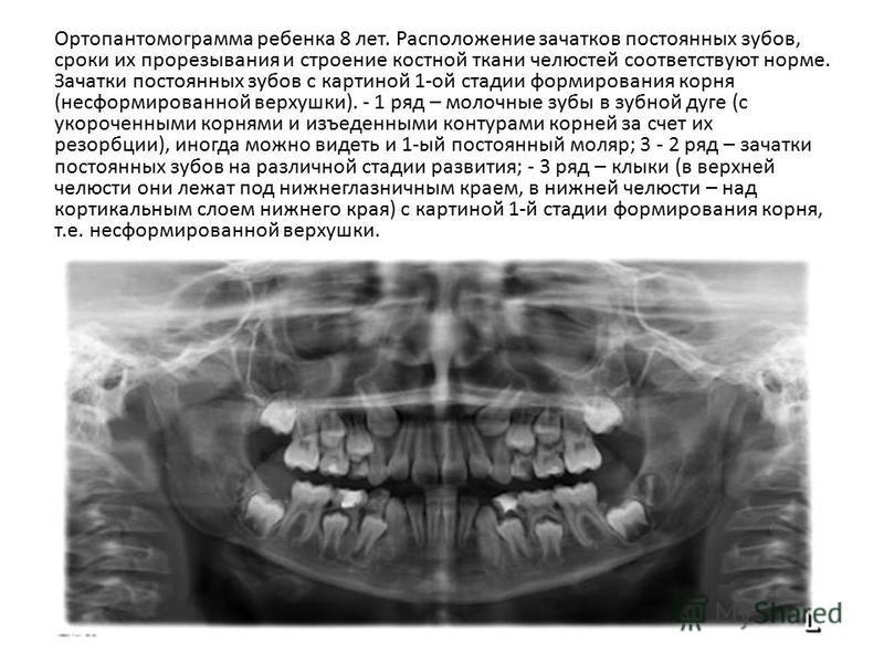 Ортопантомограмма ребенка 8 лет. Расположение зачатков постоянных зубов, сроки их прорезывания и строение костной ткани челюстей соответствуют норме. Зачатки постоянных зубов с картиной 1-ой стадии формирования корня (несформированной верхушки). - 1
