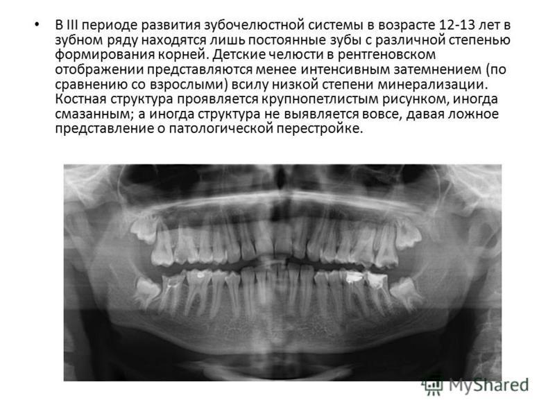 В III периоде развития зубочелюстной системы в возрасте 12-13 лет в зубном ряду находятся лишь постоянные зубы с различной степенью формирования корней. Детские челюсти в рентгеновском отображении представляются менее интенсивным затемнением (по срав