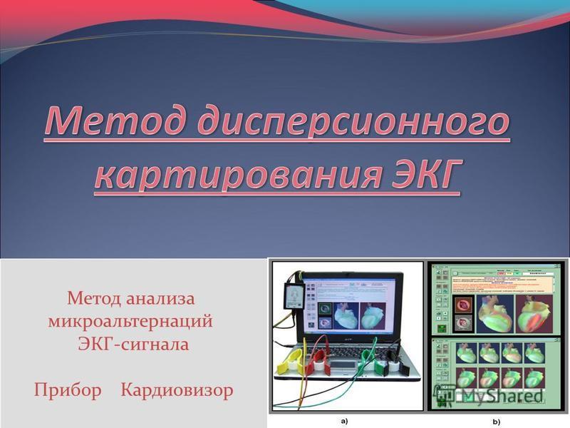 Метод анализа микроальтернаций ЭКГ-сигнала Прибор Кардиовизор