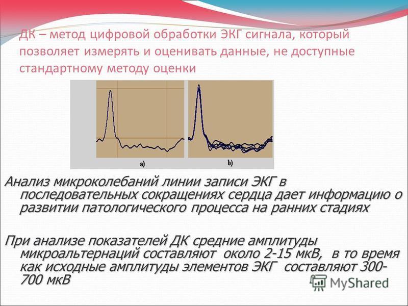 ДК – метод цифровой обработки ЭКГ сигнала, который позволяет измерять и оценивать данные, не доступные стандартному методу оценки Анализ микроколебаний линии записи ЭКГ в последовательных сокращениях сердца дает информацию о развитии патологического