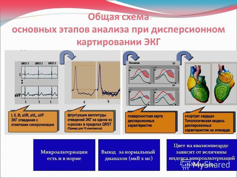 Общая схема основных этапов анализа при дисперсионном картировании ЭКГ Микроальтернации есть и в норме Выход за нормальный диапазон (мкВ х мс) Цвет на квазиэпиеарде зависит от величины индекса микроальтернаций «Миокард»