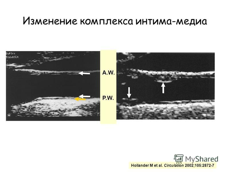 Сонная артерия Малая каротидная бляшка A.W. P.W. Hollander M et al. Circulation 2002;105:2872-7 Изменение комплекса интима-медиа
