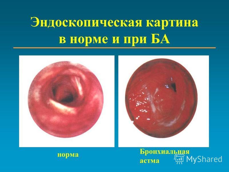 Эндоскопическая картина в норме и при БА норма Бронхиальная астма