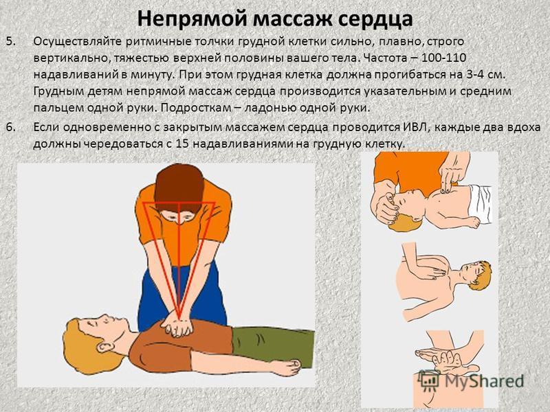 Непрямой массаж сердца 5. Осуществляйте ритмичные толчки грудной клетки сильно, плавно, строго вертикально, тяжестью верхней половины вашего тела. Частота – 100-110 надавливаний в минуту. При этом грудная клетка должна прогибаться на 3-4 см. Грудным