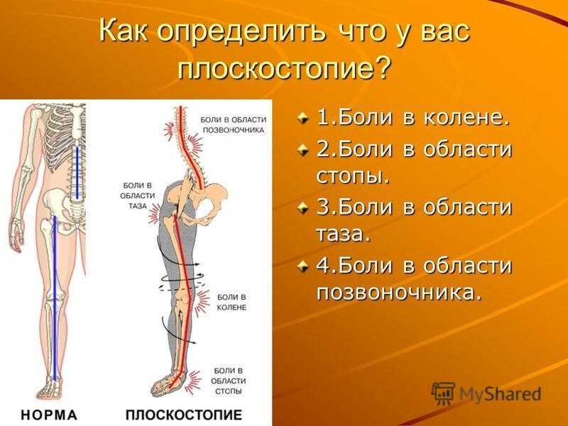 Как определить что у вас плоскостопие? 1. Боли в колене. 2. Боли в области стопы. 3. Боли в области таза. 4. Боли в области позвоночника.