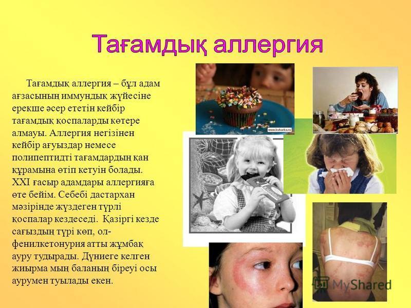 Тағамдық аллергия – бұл адам ағзасының иммундық жүйесіне ерекше әсер ететін кейбір тағамдық қоспаларды көтере алмауы. Аллергия негізінен кейбір ағуыздар немесе полипептидті тағамдардың қан құрамына өтіп кетуін болады. ХХІ ғасыр адамдары аллергияға өт