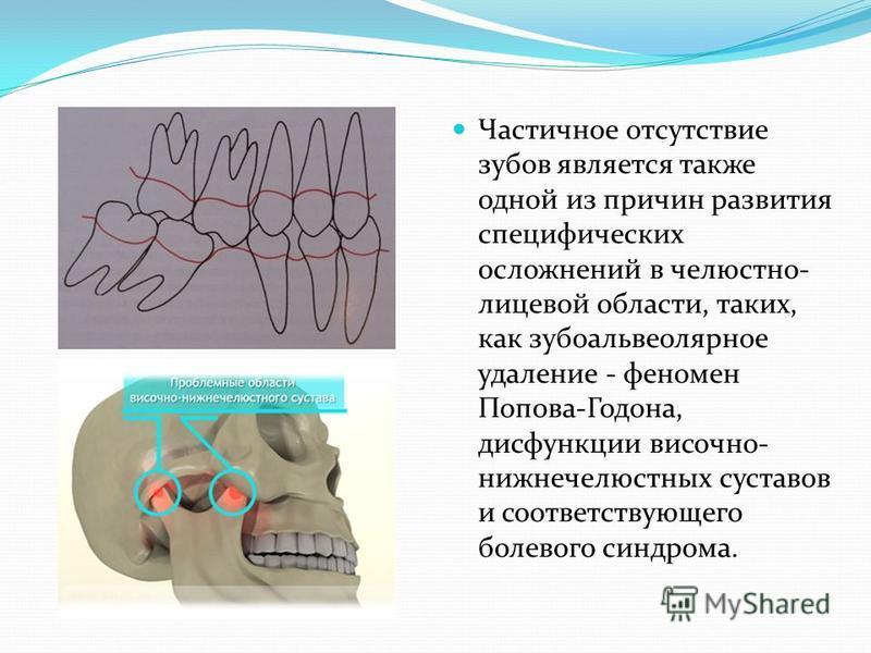 Частичное отсутствие зубов является также одной из причин развития специфических осложнений в челюстно- лицевой области, таких, как зубоальвеолярное удаление - феномен Попова-Годона, дисфункции височно- нижнечелюстных суставов и соответствующего боле