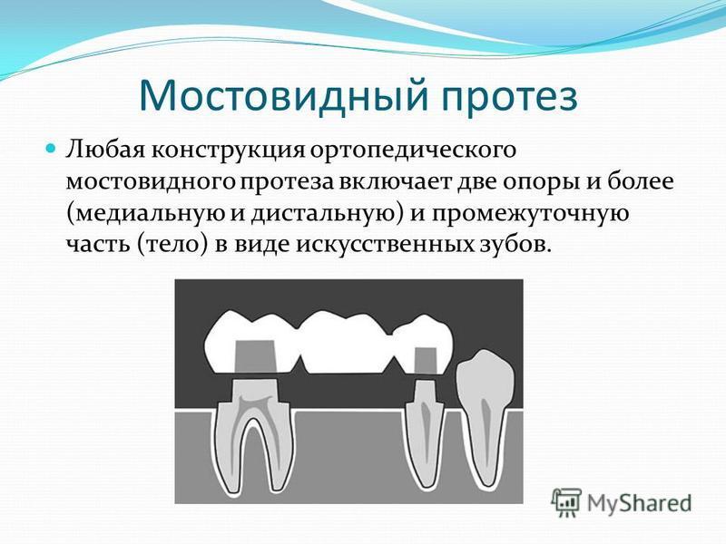 Мостовидный протез Любая конструкция ортопедического мостовидного протеза включает две опоры и более (медиальную и дистальную) и промежуточную часть (тело) в виде искусственных зубов.