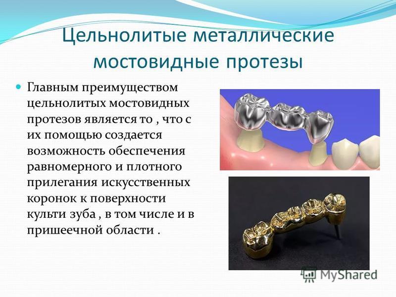 Цельнолитые металлические мостовидные протезы Главным преимуществом цельнолитых мостовидных протезов является то, что с их помощью создается возможность обеспечения равномерного и плотного прилегания искусственных коронок к поверхности культи зуба, в
