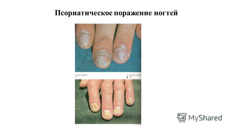 Псориатическое поражение ногтей