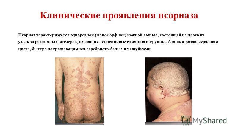 Клинические проявления псориаза Псориаз характеризуется однородной (мономорфной) кожной сыпью, состоящей из плоских узелков различных размеров, имеющих тенденцию к слиянию в крупные бляшки розово-красного цвета, быстро покрывающимися серебристо-белым