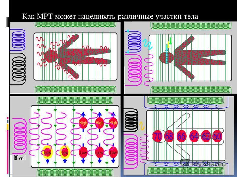 Как МРТ может нацеливать различные участки тела