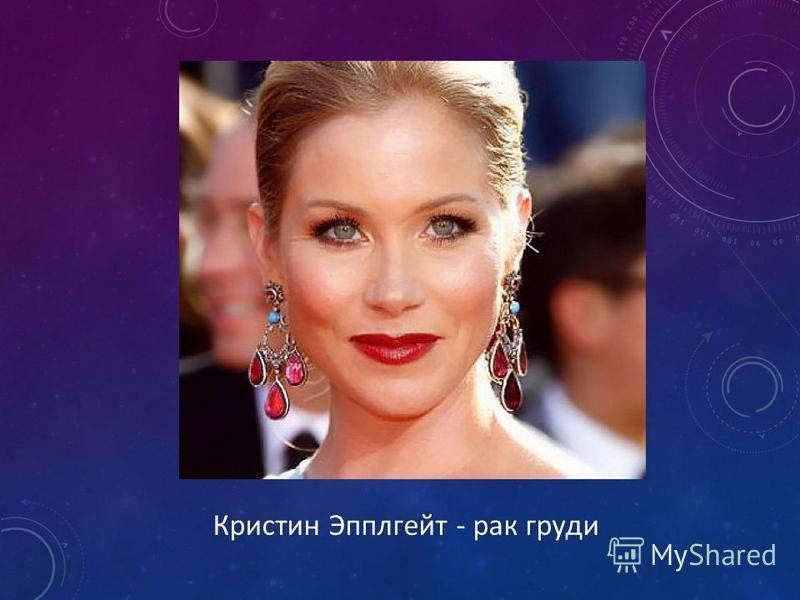 Кристин Эпплгейт - рак груди