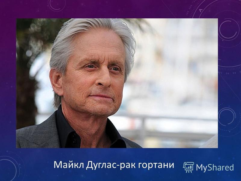 Майкл Дуглас-рак гортани