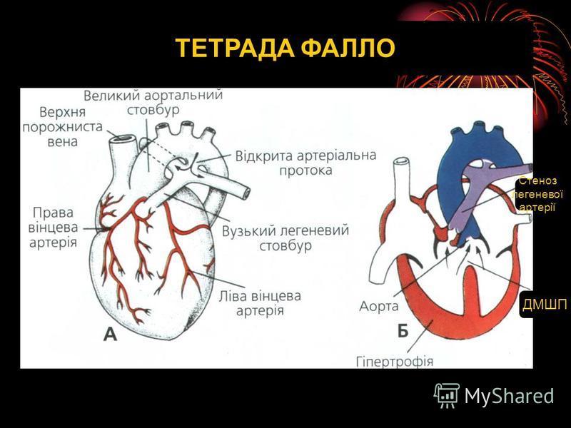 ТЕТРАДА ФАЛЛО ДМШП Стеноз легеневої артерії