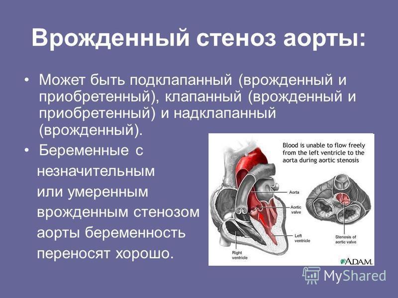 Врожденный стеноз аорты: Может быть подклапанный (врожденный и приобретенный), клапанный (врожденный и приобретенный) и надклапанный (врожденный). Беременные с незначительным или умеренным врожденным стенозом аорты беременность переносят хорошо.