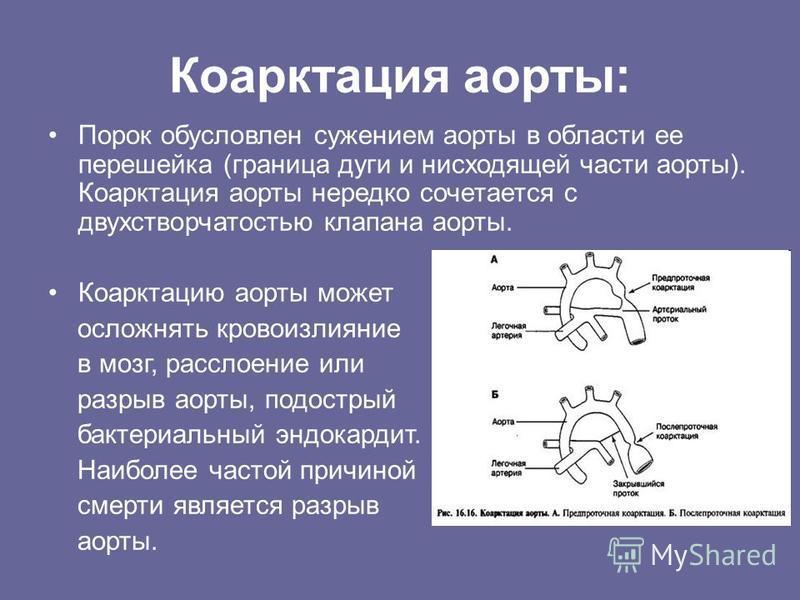 Коарктация аорты: Порок обусловлен сужением аорты в области ее перешейка (граница дуги и нисходящей части аорты). Коарктация аорты нередко сочетается с двухстворчатостью клапана аорты. Коарктацию аорты может осложнять кровоизлияние в мозг, расслоение