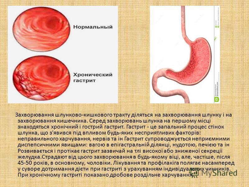 Захворювання шлунково-кишкового тракту діляться на захворювання шлунку і на захворювання кишечника. Серед захворювань шлунка на першому місці знаходяться хронічний і гострий гастрит. Гастрит - це запальний процес стінок шлунка, що з'явився під впливо
