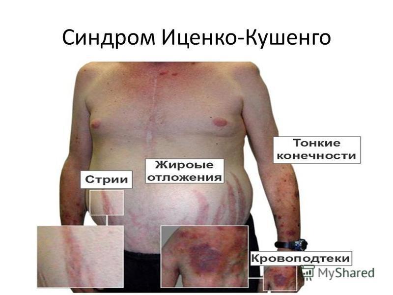 Синдром Иценко-Кушенго