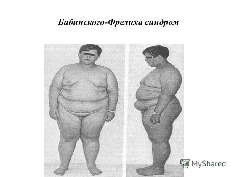 Ксеродерматоз