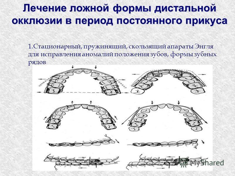 Лечение ложной формы дистальной окклюзии в период постоянного прикуса 1.Стационарный, пружинящий, скользящий аппараты Энгля для исправления аномалий положения зубов, формы зубных рядов