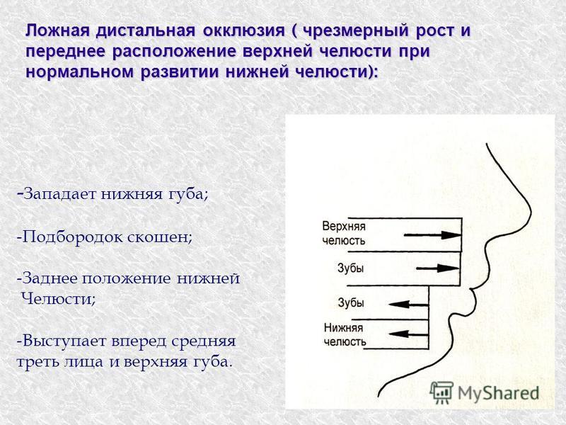 Ложная дистальная окклюзия ( чрезмерный рост и переднее расположение верхней челюсти при нормальном развитии нижней челюсти ): - Западает нижняя губа; -Подбородок скошен; -Заднее положение нижней Челюсти; -Выступает вперед средняя треть лица и верхня