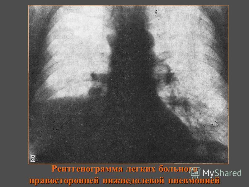Рентгенограмма легких больного правосторонней нижнедолевой пневмонией