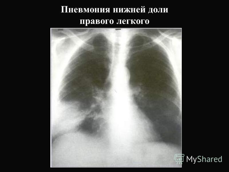 Пневмония нижней доли правого легкого