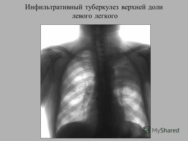 Инфильтративный туберкулез верхней доли левого легкого