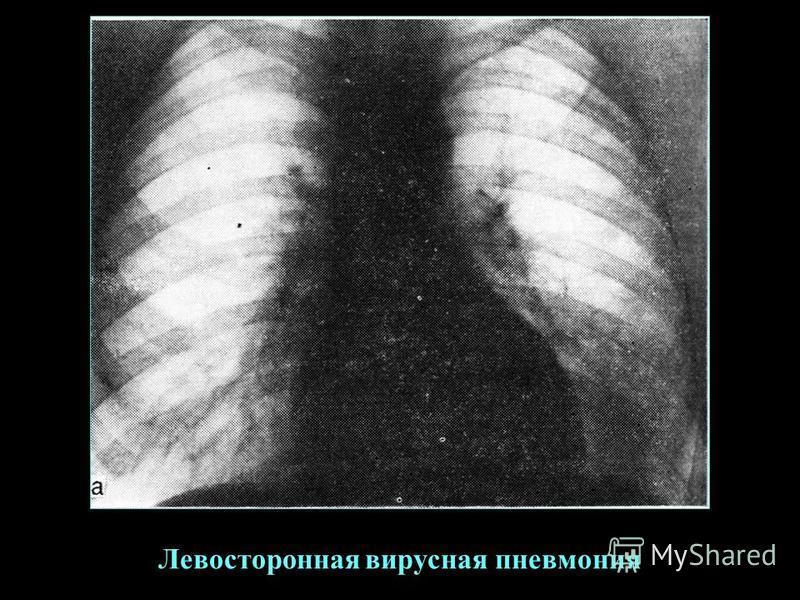 Левосторонная вирусная пневмония