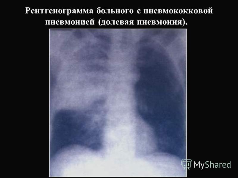 Рентгенограмма больного с пневмококковой пневмонией (долевая пневмония).