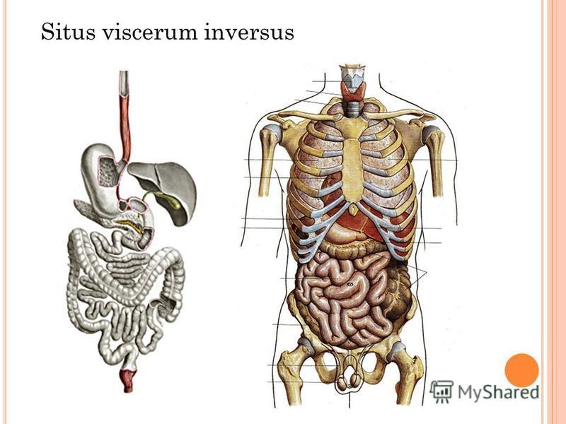 Situs viscerum inversus