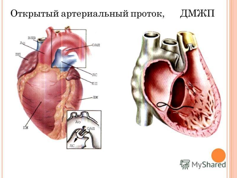 Открытый артериальный проток, ДМЖП