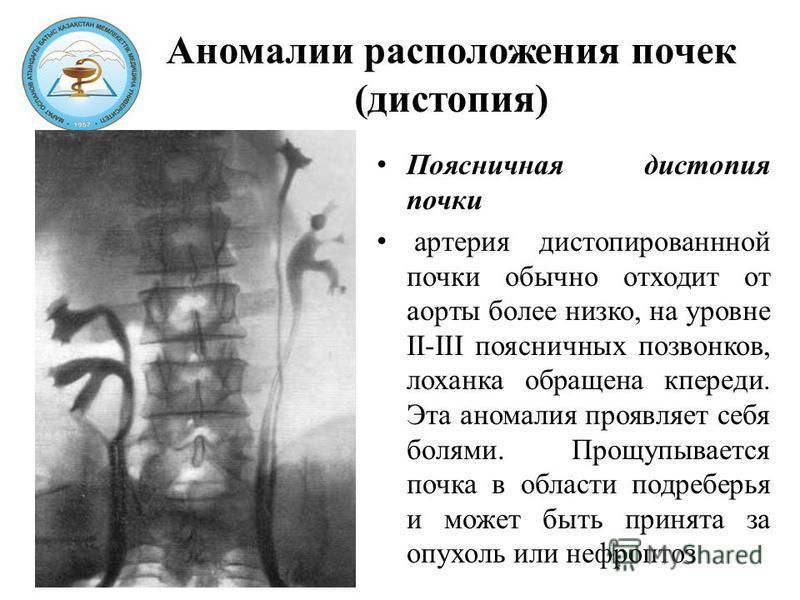 Аномалии расположения почек (дистопия) Поясничная дистопия почки артерия дистопированной почки обычно отходит от аорты более низко, на уровне II-III поясничных позвонков, лоханка обращена кпереди. Эта аномалия проявляет себя болями. Прощупывается поч