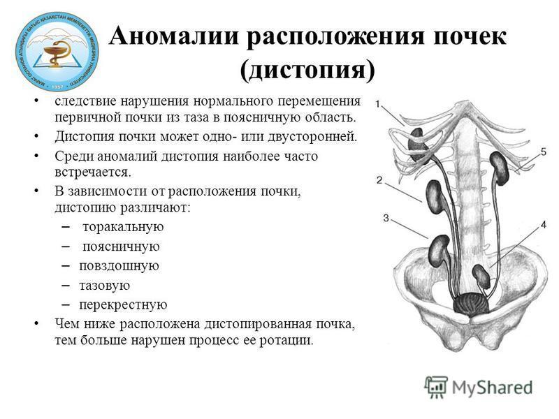 Аномалии расположения почек (дистопия) следствие нарушения нормального перемещения первичной почки из таза в поясничную область. Дистопия почки может одно- или двусторонней. Среди аномалий дистопия наиболее часто встречается. В зависимости от располо