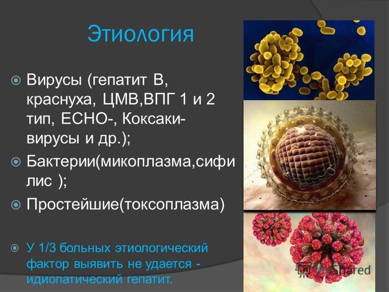Этиология Вирусы (гепатит В, краснуха, ЦМВ,ВПГ 1 и 2 тип, ЕСНО-, Коксаки- вирусы и др.); Бактерии(микоплазма,сифилис ); Простейшие(токсоплазма) У 1/3 больных этиологический фактор выявить не удается - идиопатический гепатит.