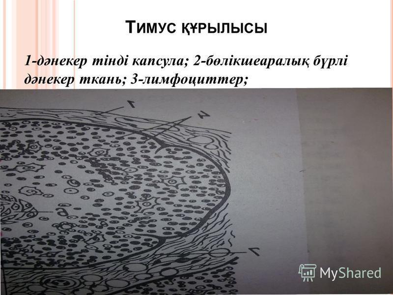 Т ИМУС ҚҰРЫЛЫСЫ 1- дәнекер тінді капсула ; 2- бөлікшеаралық бүрлі дәнекер ткань ; 3- лимфоцит тер ;