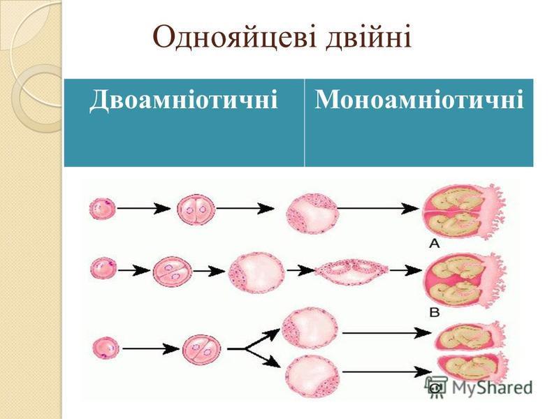 Однояйцеві двійні ДвоамніотичніМоноамніотичні