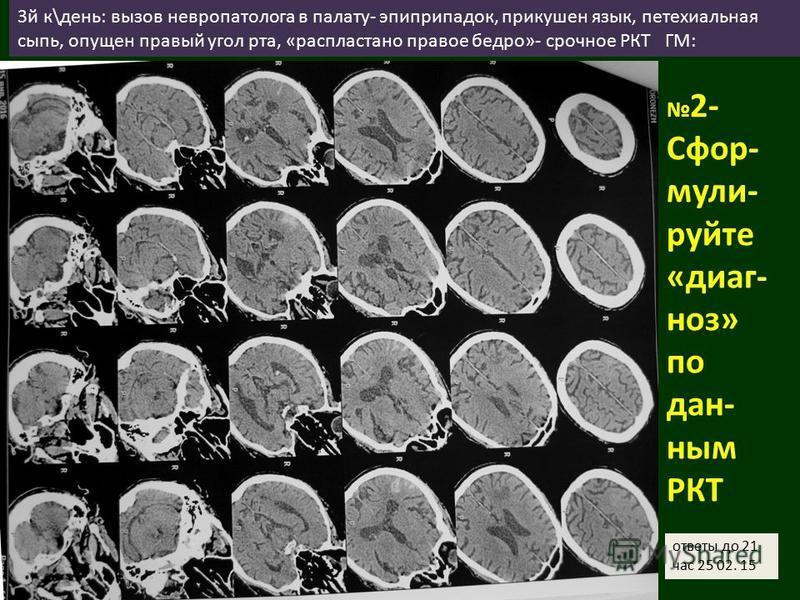 3 й к\день: вызов невропатолога в палату- эпиприпадок, прикушен язык, петехиальная сыпь, опущен правый угол рта, «распластано правое бедро»- срочное РКТ ГМ: 2- Сфор- мули- руйте «диагноз» по данным РКТ ответы до 21 час 25 02. 15