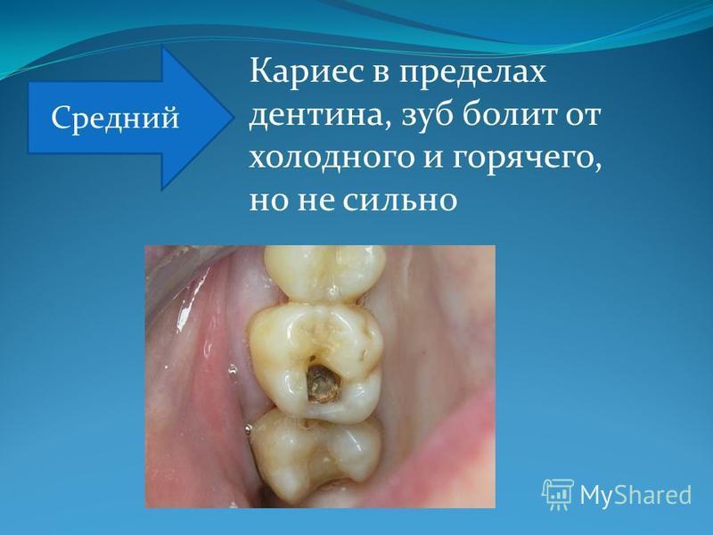 Кариес в пределах дентина, зуб болит от холодного и горячего, но не сильно Средний