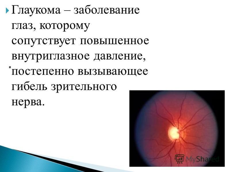 Глаукома – заболевание глаз, которому сопутствует повышенное внутриглазное давление, постепенно вызывающее гибель зрительного нерва.