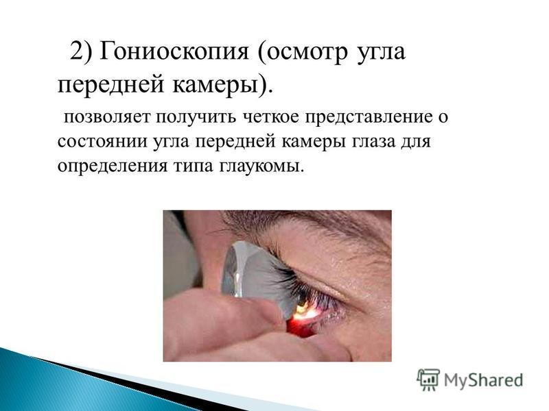 2) Гониоскопия (осмотр угла передней камеры). позволяет получить четкое представление о состоянии угла передней камеры глаза для определения типа глаукомы.