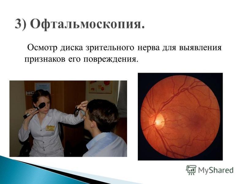 Осмотр диска зрительного нерва для выявления признаков его повреждения.