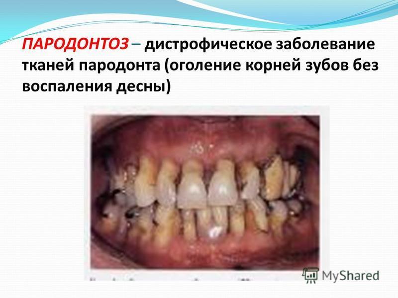 ПАРОДОНТОЗ – дистрофическое заболевание тканей пародонта (оголение корней зубов без воспаления десны)