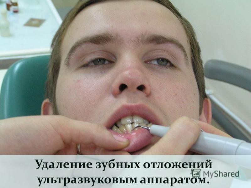 Удаление зубных отложений ультразвуковым аппаратом.