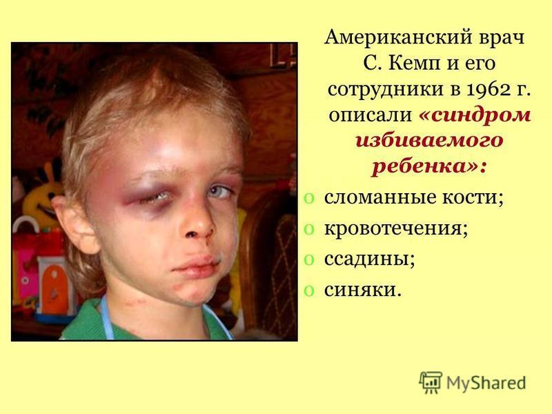 Американский врач С. Кемп и его сотрудники в 1962 г. описали «синдром избиваемого ребенка»: oсломанные кости; oкровотечения; oссадины; oсиняки.